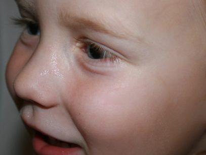 Kinderhaut braucht besonders natürliche Pflege