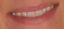 Wunderschön - ein strahlend weißes Lächeln